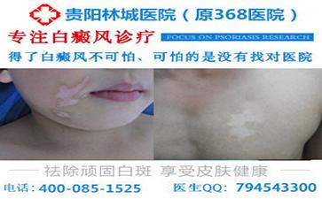 能否根据皮肤损害来诊断出白癜风